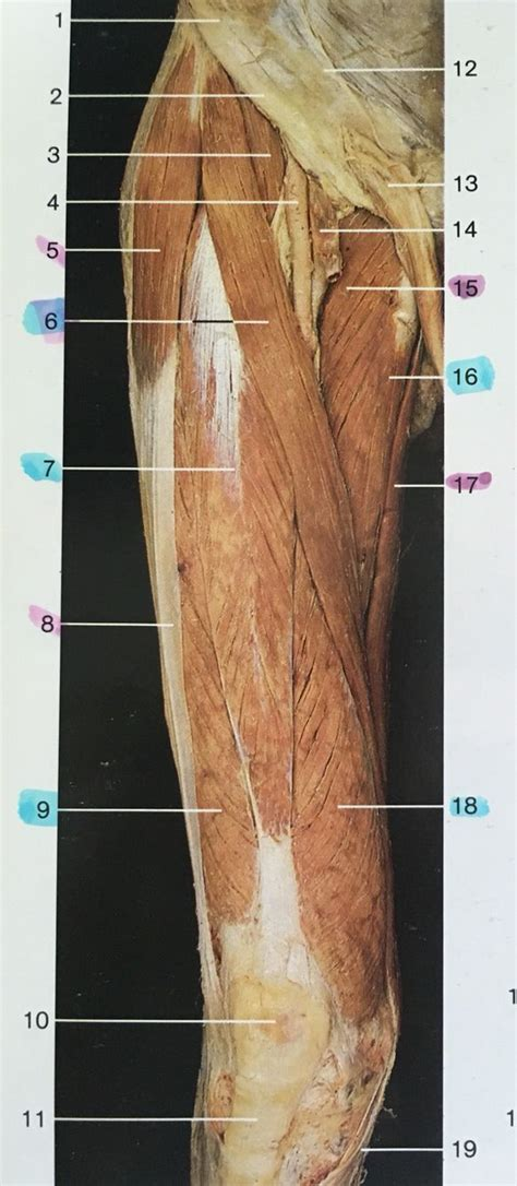 Right and ventral aspect muscles of thigh: 3: iliopsoas, 5